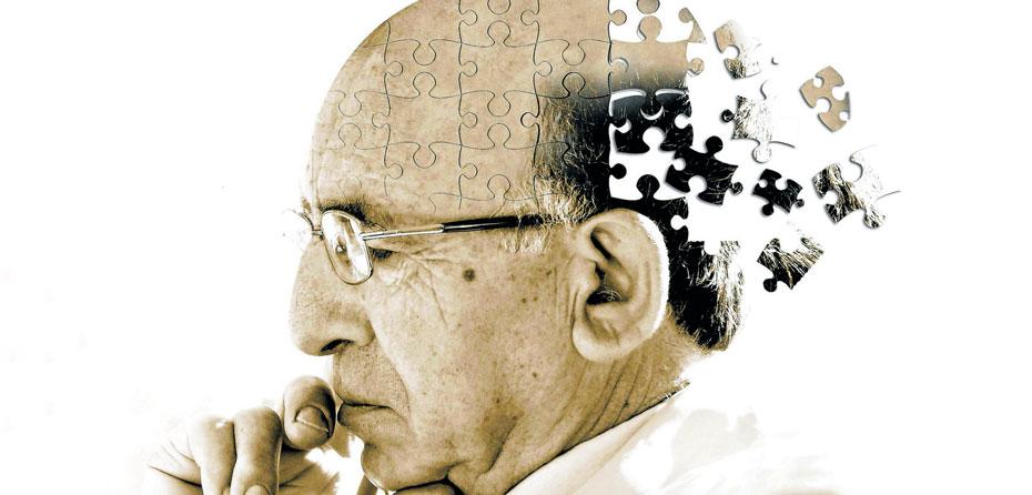 آلزایمر چه علائمی دارد؟